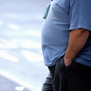 Obesity May Lead To Memory Problems in Young Adults