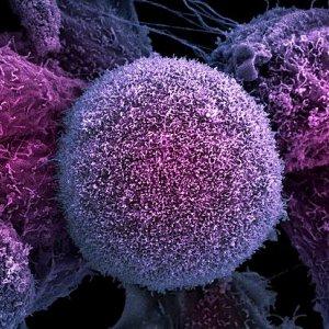 Chemotherapy Alternative
