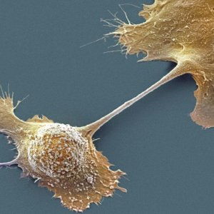 Cell Separator for Detecting Cancer