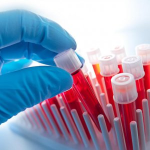 Rapid Blood Test May Cut Antibiotics Misuse