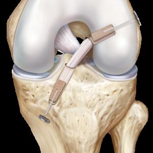 Ceramic Cover for Bone Implant Fixation