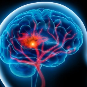 New Method to Reduce Stroke Disabilities