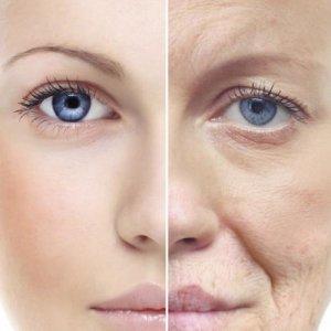 Premature Aging of Women