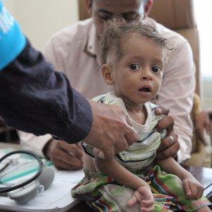 A boy is treated for malnutrition in Yemen. (File Photo)