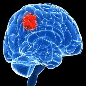 Brain Tumor Day