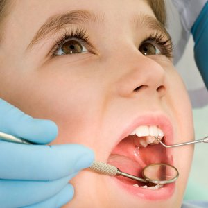 The clinic offer services to children from families who cannot afford visits to specialized dental clinics.