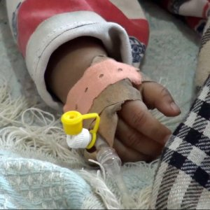 Cholera Wreaking Havoc in Yemen