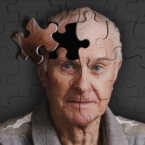 Alzheimer's Rising