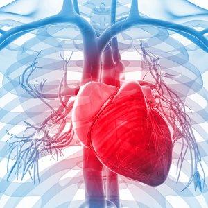 Cardiovascular Event