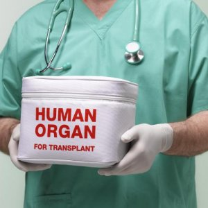 Kidney Transplant From Incompatible Donors