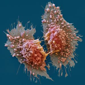 Cancer Survival
