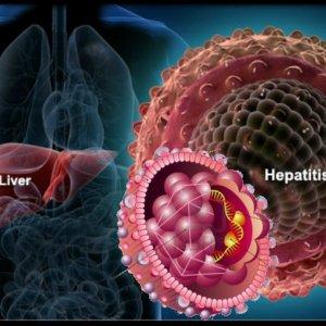Viral Hepatitis a Leading Global Killer