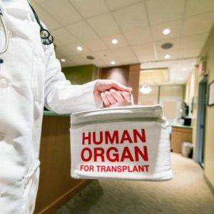 Kidney Transplants Top Organ Surgeries Across Iran
