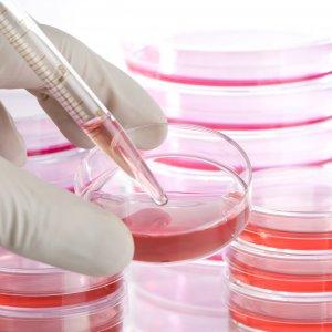 Strides in Stem Cell Transplant