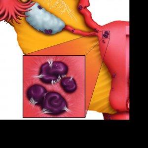 Congress on Endometriosis