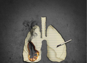 Tobacco Causes 90% of Lung Cancers