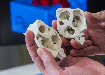 Surgeon Uses 3D Printed Heart for Surgery