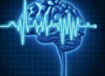 Brain Stroke at Lower Age in Iran