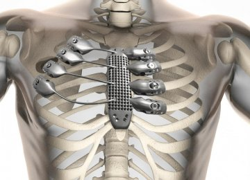 Spanish Cancer Patient Gets 3D-Printed Rib Cage