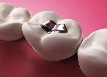 Nanomaterial for Dental Filling