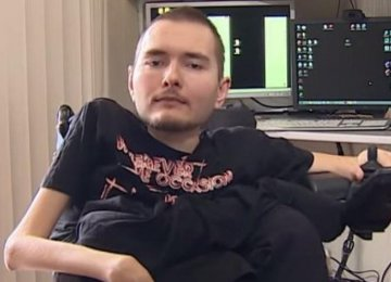 First Human Head Transplant Scheduled for 2017