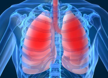Int'l Congress on Lung Diseases