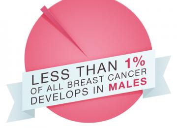 Double Mastectomies in Men