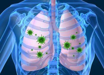 Higher TB Rates in London Than Iraq, Rwanda