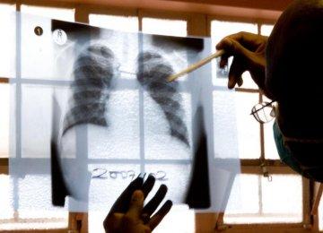 Concern Over Drug-Resistant TB