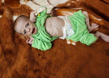 500,000 Yemini Kids Face Malnutrition