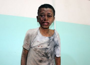 Saudi-UAE Attacks on Yemen Condemned