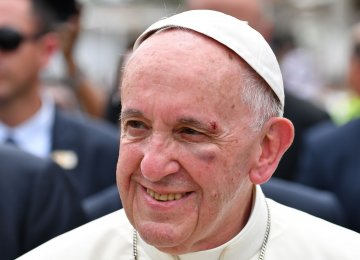 Pope Francis Injured After Hitting Head
