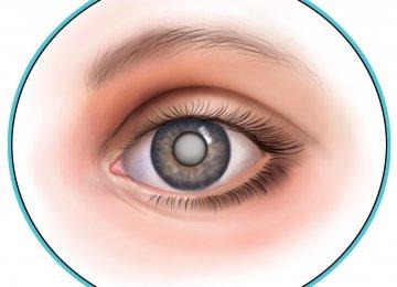 Screening for Cataract Needed