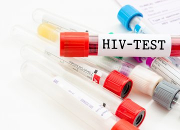 Few Young People Have Access to HIV Tests