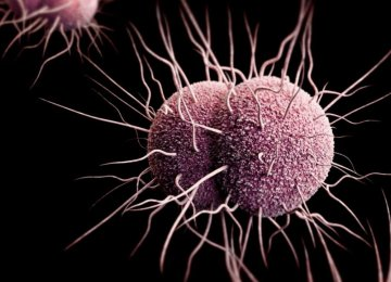 WHO: Drug-Resistant Gonorrhea on the Rise