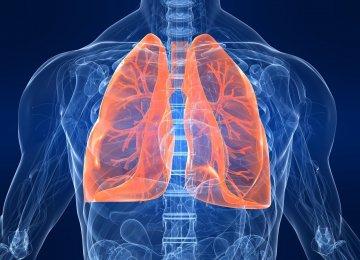 Transplant Delays Causing Deaths