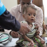 A boy is treated for malnutrition in Yemen. (File Photo)