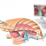 Brachytherapy Radiation  Implants for Cancer Patients