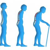 High Risk of Osteoporosis