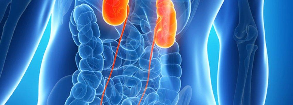 First Kidney Transplant Varsity
