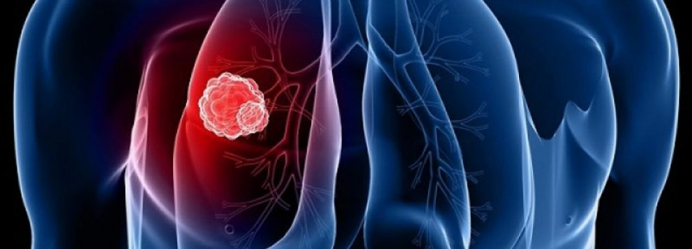 Biomarker of Early Lung Cancer Identified