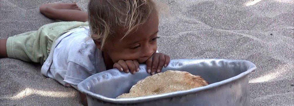 A famine-hit child in Yemen (File Photo)